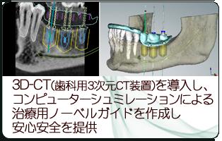 3D-CT(歯科用3次元CT装置)を導入し、コンピューターシミュレーションによる治療用ノーベルガイドを作成し安心安全を提供