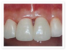 歯周形成外