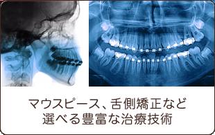 マウスピース、舌側矯正など選べる豊富な治療技術